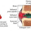 ข้ออักเสบรูมาตอยด์ (rheumatoid) และ อย่าเรียกว่าโรคนะ เพราะมันไม่ใชโรค