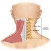 กระดูกสันหลังส่วนคอเสื่อม (Cervical spondylosis)