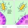 ระบบภูมิคุ้มกัน Immune System